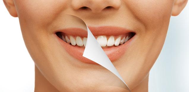 отбеливание зубов в Херсоне