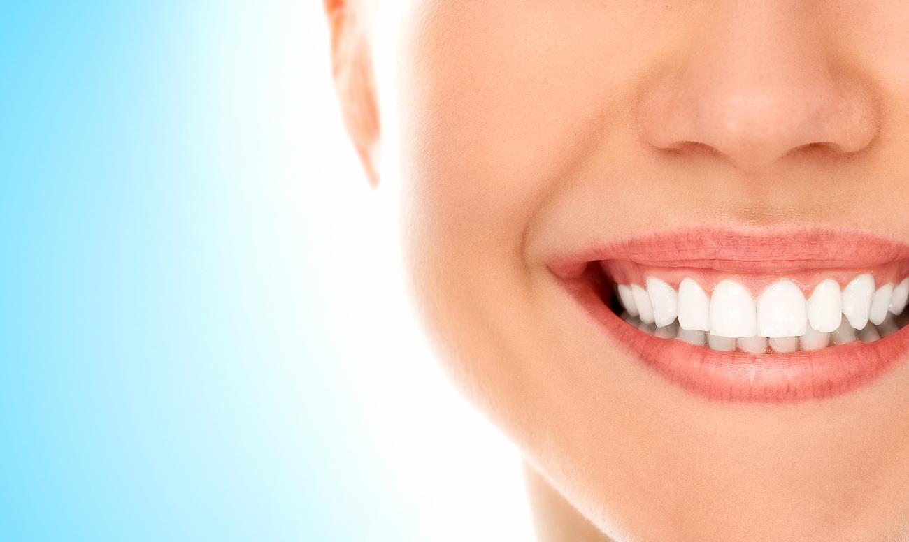 Профессиональная чистка зубов - Стоматология Троицк
